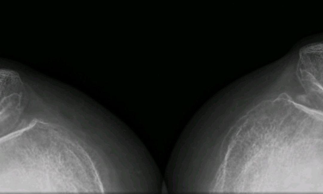 Artrosis – Entenderla para aliviar el dolor